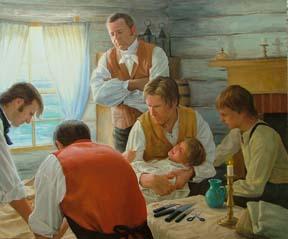 約瑟‧斯密 兒時手術